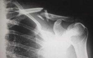 Broken Collarbone Motorcycle Accident